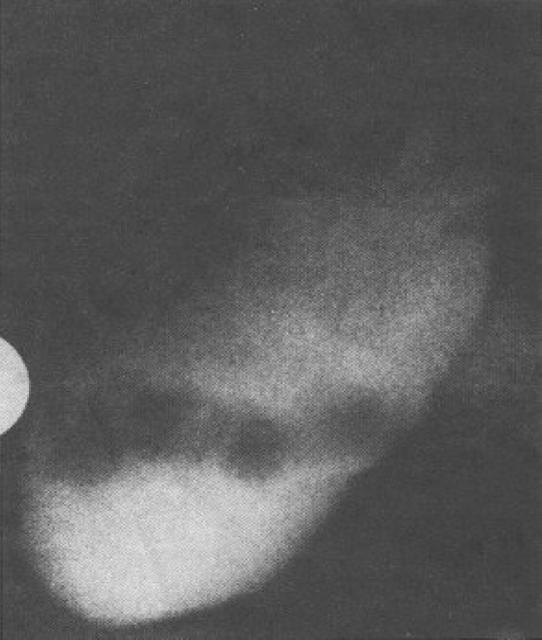 gambaran hasil kolesistografi oral menunjukan gambaran batu yang radiolusen yang mengambang di dalam kandung empedu, kolesterol, pigmen, campuran, radioopak, Saluran empedu, duktus koledokus, CBD, koledokolitiasis