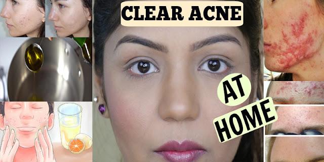 How To Treat Acne Overnight, See How Make Skin Lightening Face Mask At Home!