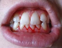 what causes bleeding gums