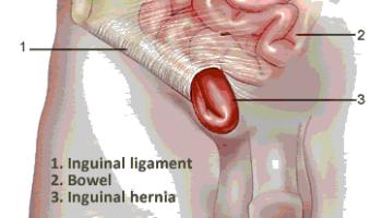 Cara Mengobati Penyakit Hernia Dengan Obat Paling Ampuh