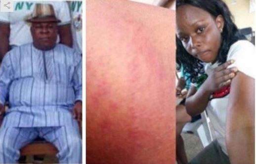 Female Corper Flogged Mercilessly By School Principal