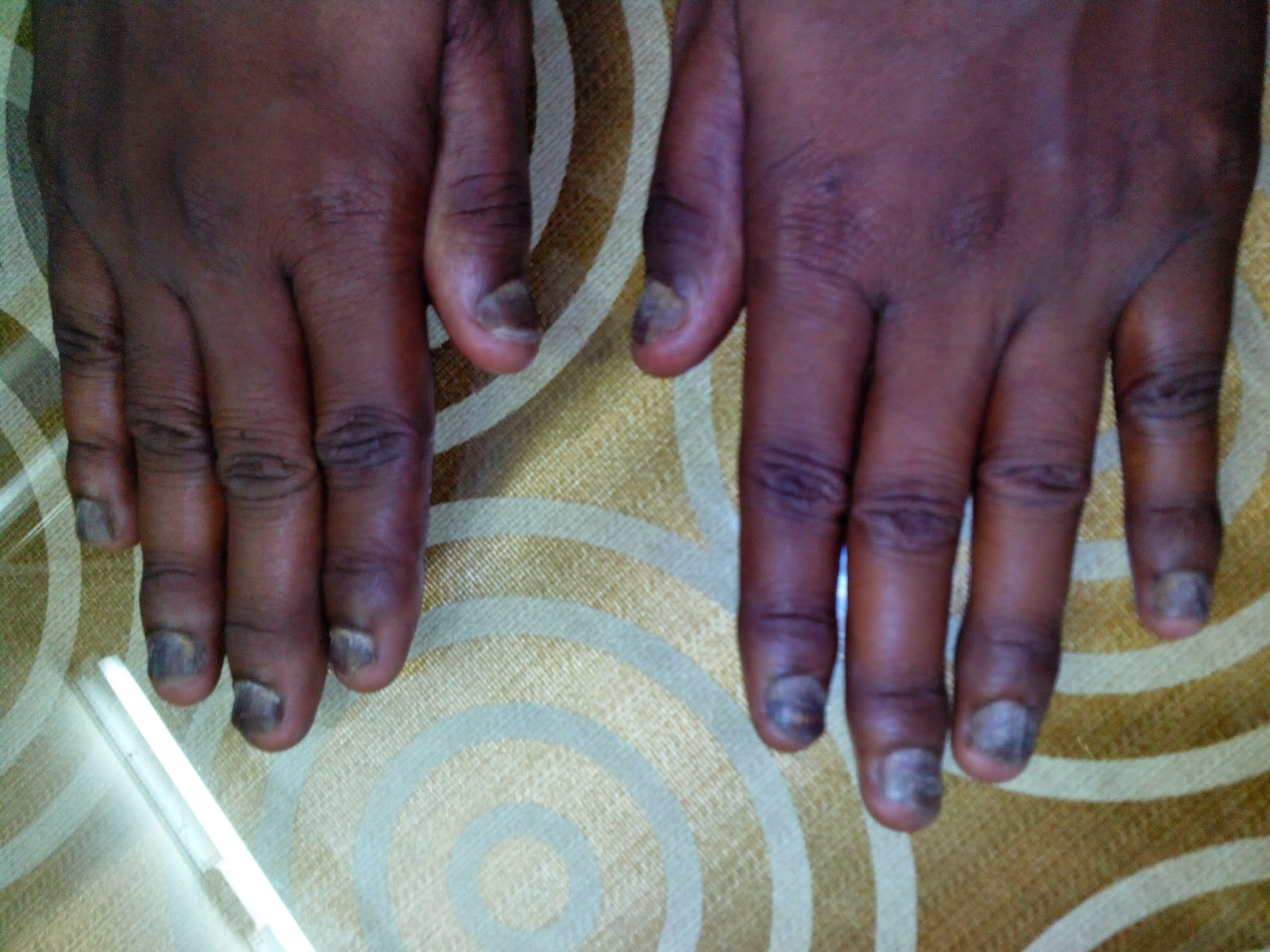 fungal nail, psoriasis nail, nail problems, treatment clinic, chennai, tamil nadu, velachery,
