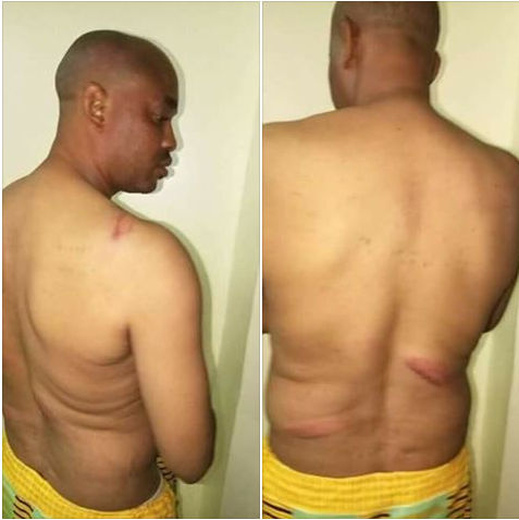 Former Lawmaker Flogged By Thugs During APC Congress In Ondo State. Photos