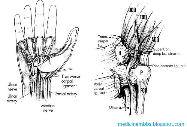 Mbbs Medicine Humanity First Ulnar Tunnel Syndrome