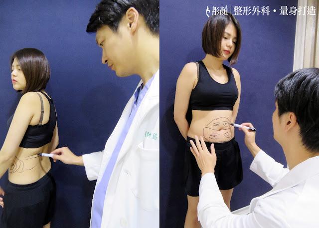 彤顏診所-整形外科-複合式抽脂-瘦小腹-腹部抽脂-小腹抽脂費用-陳錫賢醫師-炫腹-超音波抽脂-藝術體雕