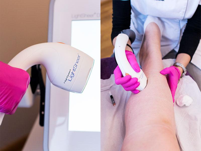 Depilacja laserowa łydek - moje wrażenia w trakcie zabiegów