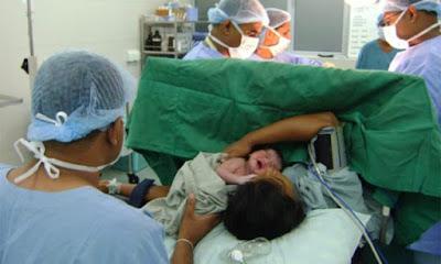 En RD es donde se hacen más partos por cesárea