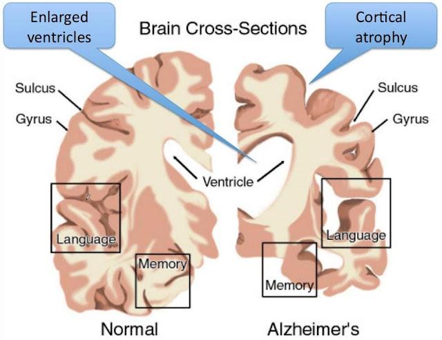 penyakit alzheimer atau nyanyuk