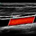 ECOGRAFIA: Curso Anual de Doppler Vascular Periférico- ONLINE/PRESENCIAL