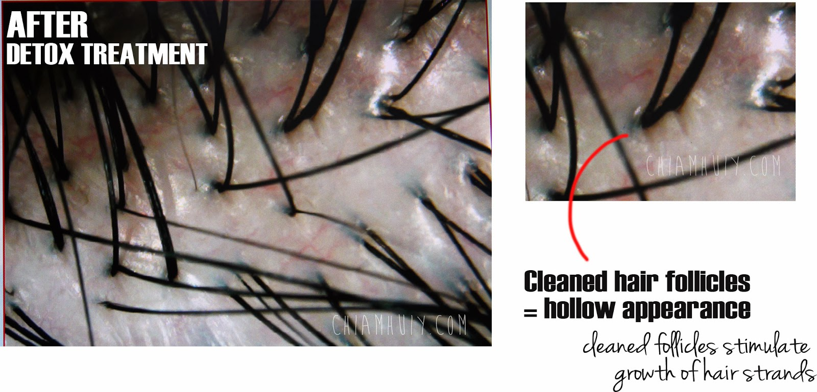 If The Follicles Are Clogged With Excessive Se Oil New Hair Growth Will Be Impeded