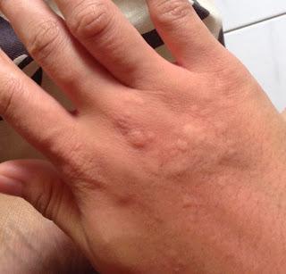 alergi gatal udang