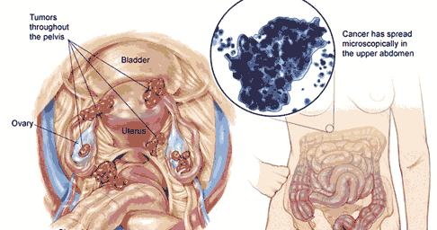 Tanda-Tanda Gejala Penyakit Kanker Ovarium | Serambi Kesehatan