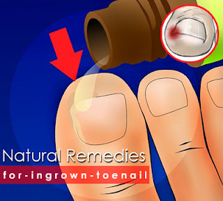 How To Treat Ingrown Toenail - Natural Home Remedies 2016 For Ingrown Toenail