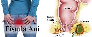 penyakit fistula ani