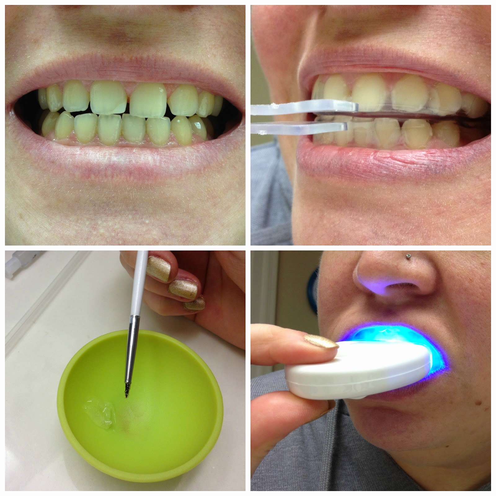 Dr Song Professional Teeth Whitening Kit Review Rixiepixie