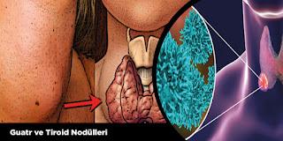Guatr ve Tiroid Nodülleri
