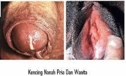 Obat Vagina Mengeluarkan Nanah Dan Perih