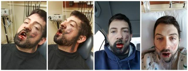 Hombre pierde 7 dientes al explotarle vapeador en la cara