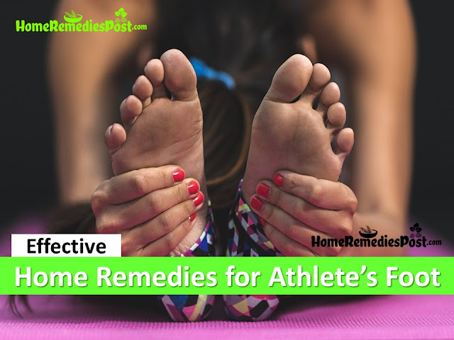 how to get rid of athlete's foot, home remedies for athlete's foot, athlete's foot treatment overnight fast, athlete's foot fungus treatment, athlete's foot relief, athlete's foot home remedies, how to treat athlete's foot, how to cure athlete's foot, athlete's foot remedies, remedies for athlete's foot, cure athlete's foot, treatment for athlete's foot, best athlete's foot treatment, how to get relief from athlete's foot, relief from athlete's foot, how to get rid of athlete's foot fast,