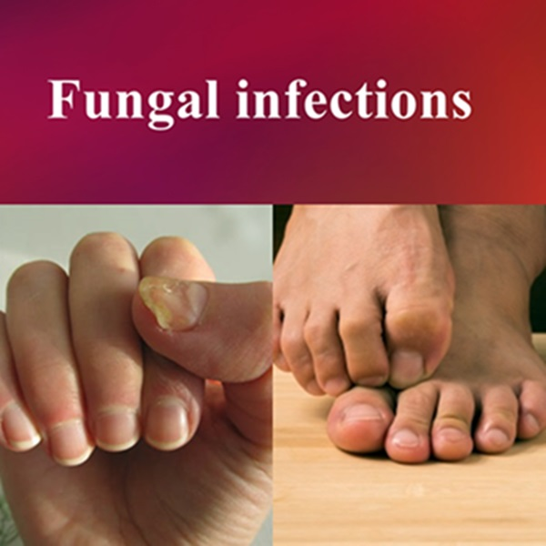 Effective treatment of fungus (fungal infections) of the skin, toes, nails and other body parts
