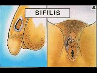 Merk Obat Sipilis yang Paling Ampuh di Apotek Umum