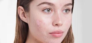 أفضل 10 منتجات لحب الشباب، وفقاً لأطباء الجلد