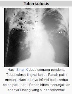 Obat TBC (Tubercolosis) menggunakan Ramuan Alami