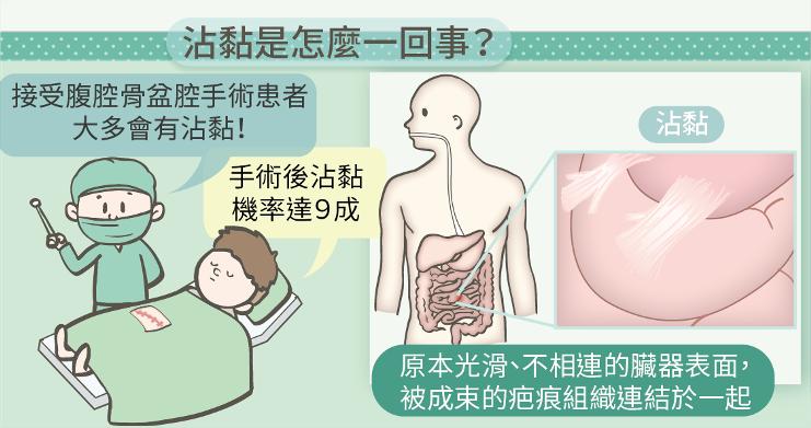 腹膜 腔 後