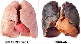 paru-paru perokok