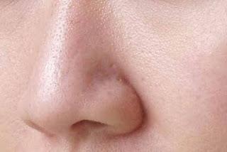cara alami mengecilkan pori - pori wajah