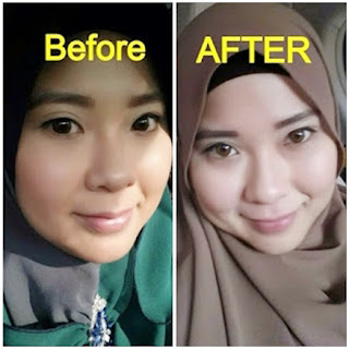 Before After Pemakaian Cream La Bella Esther BPOM