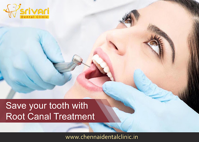 https://www.chennaidentalclinic.in/root-canal-treatment.html