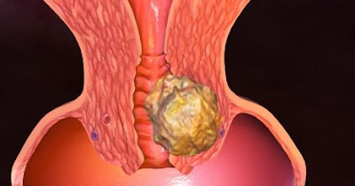 penyakit kanker vagina