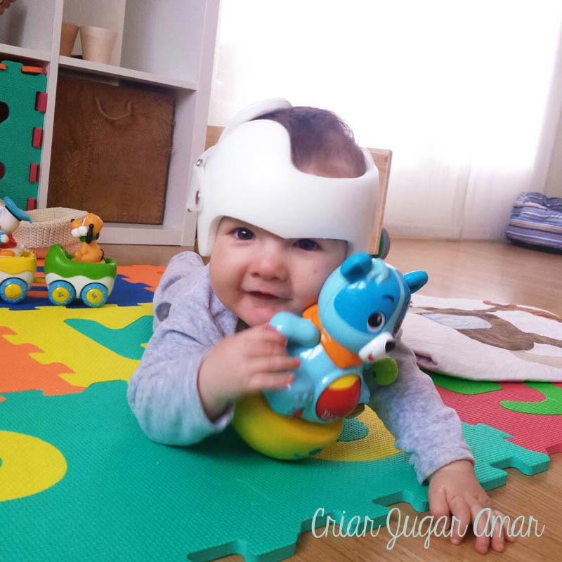Doc Bans, casco ortopédico para tratar plagiocefalia braquicefalia