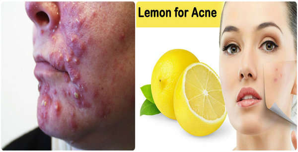acne , pimples - Home Remedies