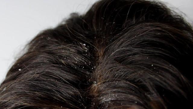 3 وصفات سريعة للتخلص من قشرة الرأس