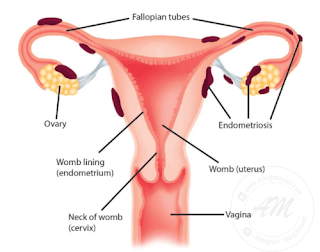 Endometriosis - Apa itu Endometriosis