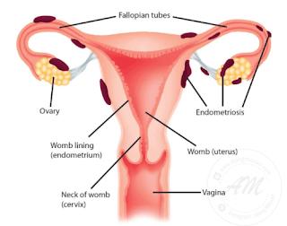 Endometriosis - Apa itu Endometriosis