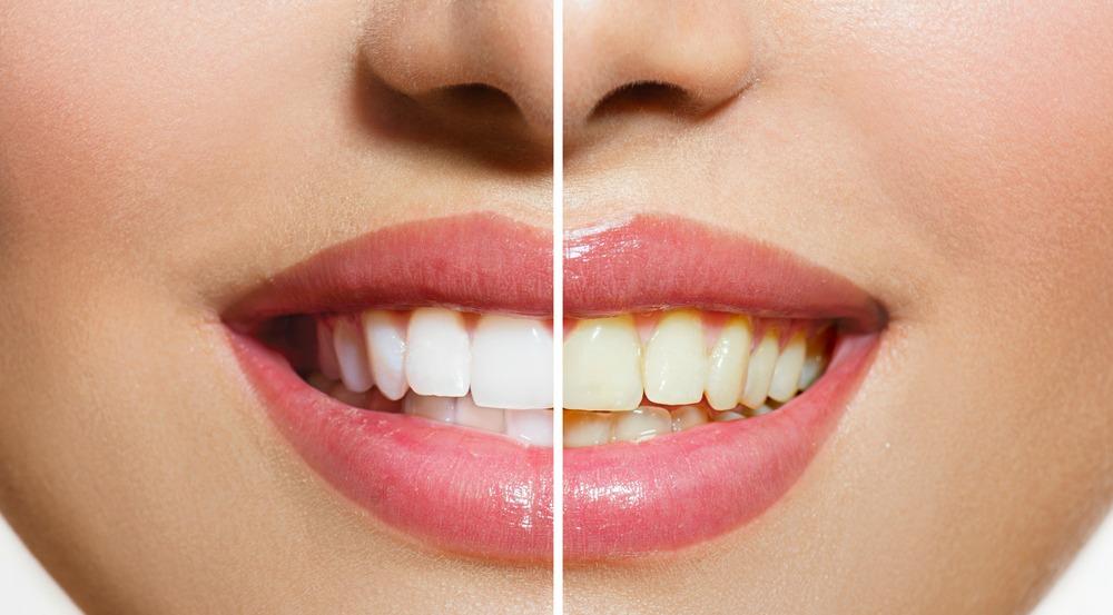 Clareamento Dental Caseiro Moldeira Nanda Soares