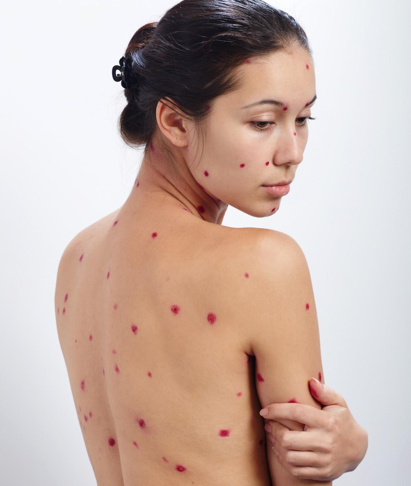 dureri articulare cu varicelă la adulți