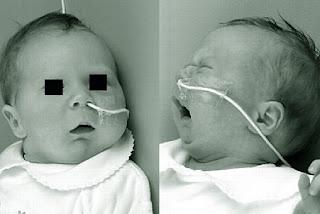 Síndrome de Pierre Robin (foto tomada de http://syndrome.org)