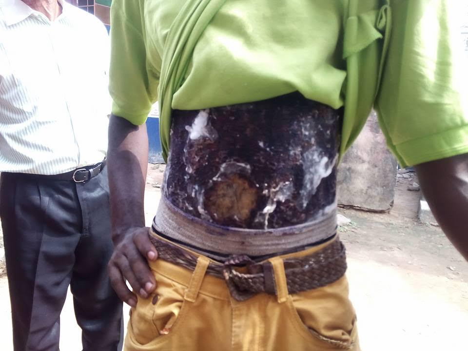 Photos: Alleged car thief with fake burn wounds nabbed in