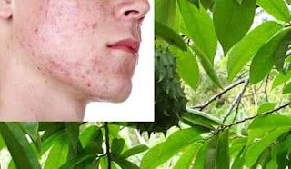 manfaat daun sirsak untuk kecantikan
