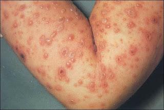 Obat Herpes pada Tangan yang Mujarab