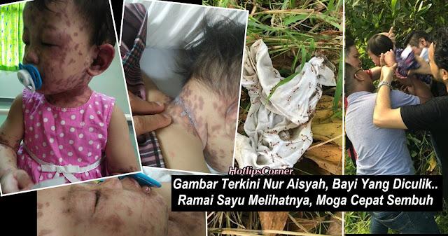 7 FOTO: Gambar Terkini Nur Aisyah, Bayi Yang Diculik.. Ramai Sayu Melihatnya