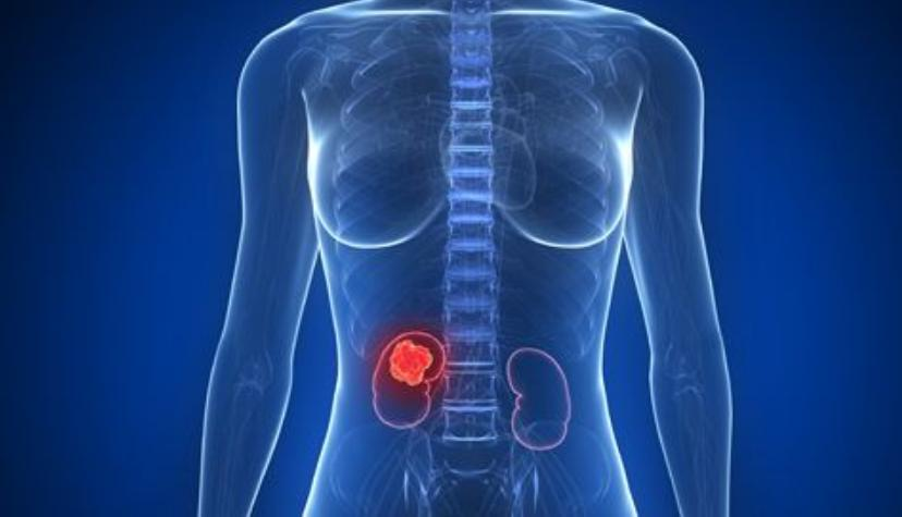 Kidney Cancer Prognosis Life Expectancy and Survival Rate 10 Years