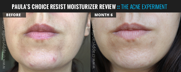 Paula's Choice RESIST Anti-Aging Clear Skin Hydrator Before & After :: The Acne Experiment