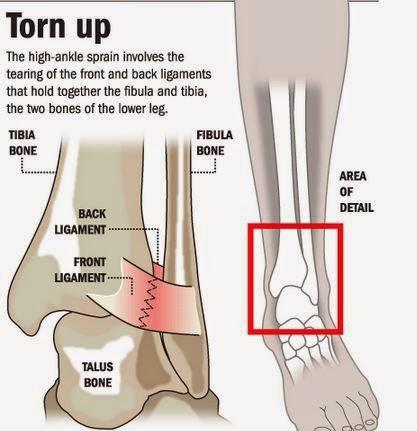 tight hip flexors and sciatica