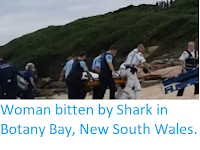 https://sciencythoughts.blogspot.com/2018/02/woman-bitten-by-shark-in-botany-bay-new.html