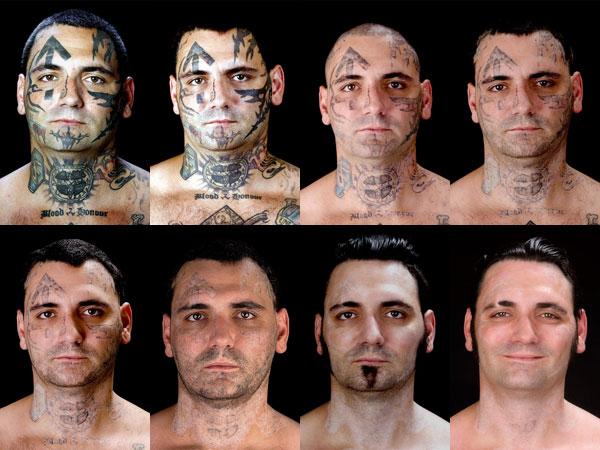 Proceso antes y después de la eliminación de tatuajes